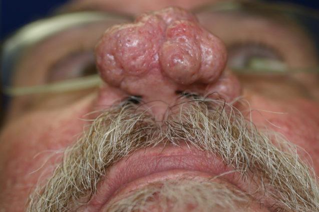 Rhinophyma – Nasal Manifestation of Rosacea